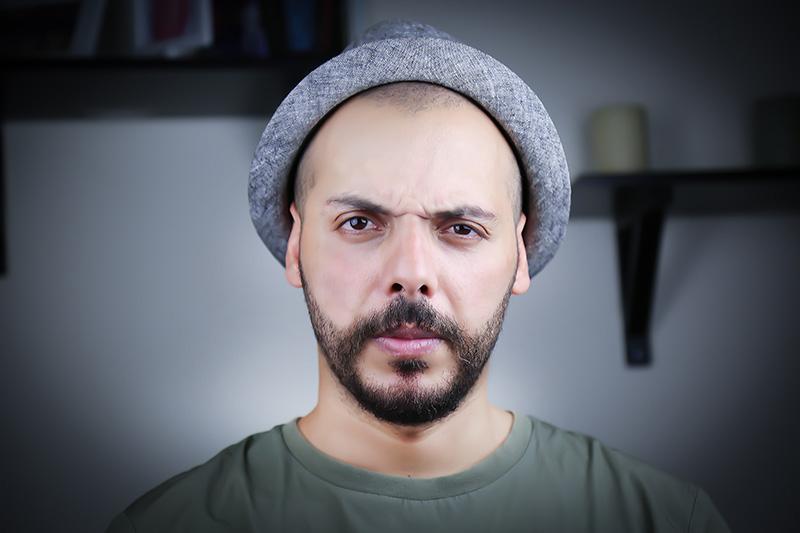 man considering a hair transplant